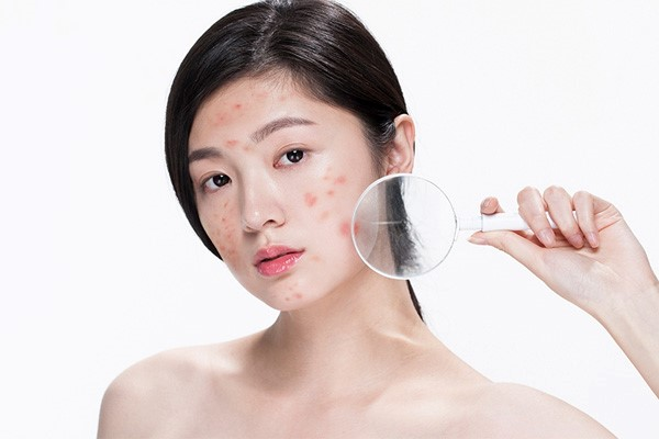 https://www.talkbeauty.vn/public/assets/article_dir/2021/05/mun.jpg